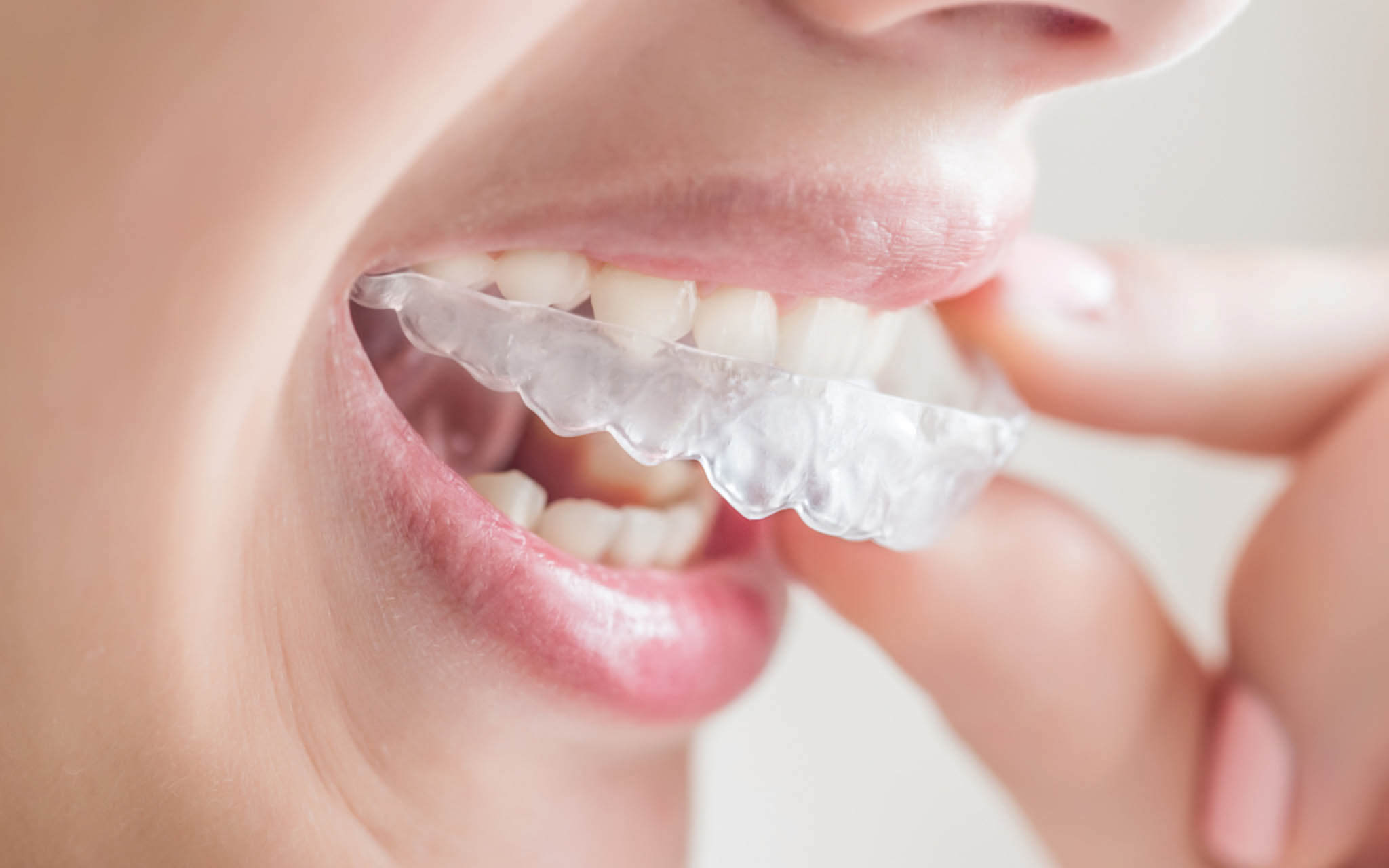 An example of Invisalign clear braces in Cincinnati, OH